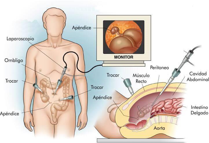 apendicectomia-laparoscopica