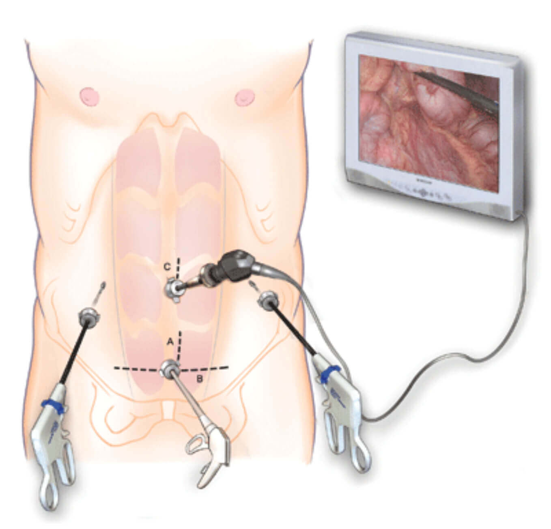 cirugia-laparoscopica